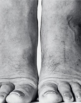 John Coplans, Self-Portrait- Feet Frontal